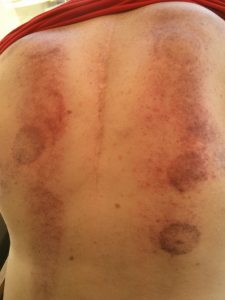 cuppping therapy on john duthie as part of chronic pain management - the cups leave red marks and look like pepperoni pizza
