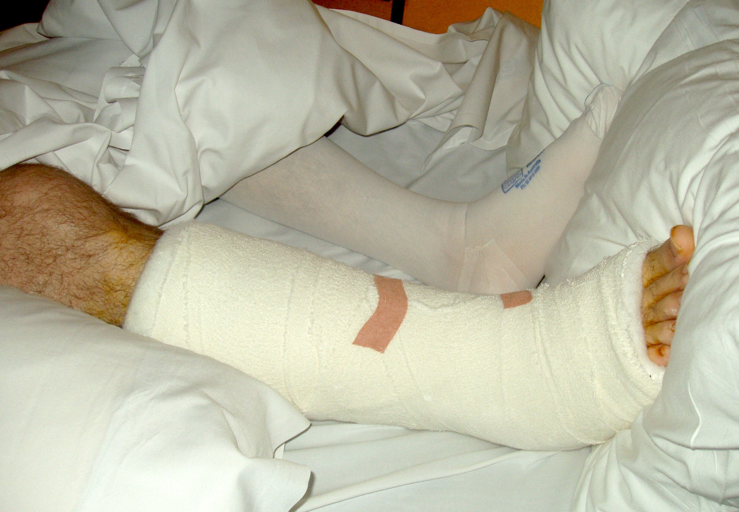john's broken leg and ankle in bed